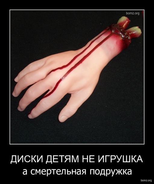 Helly Hansen ребенку отрезали руку сонник отличие любого